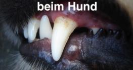 Zahnfleischentzündung